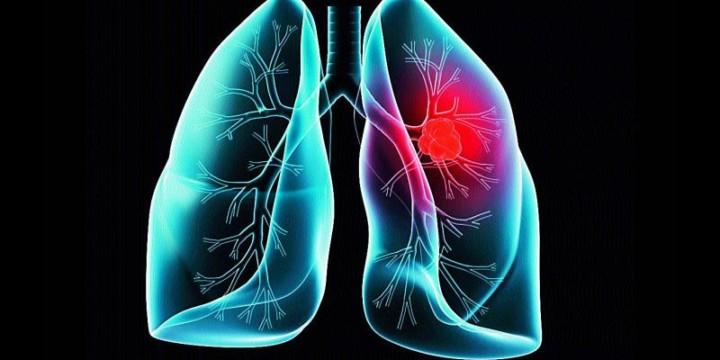 Lund Cancer Treatment in Ayurveda