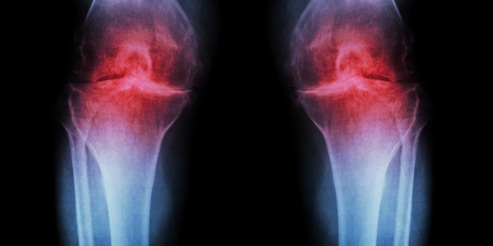 Treat Osteoarthritis with Ayurveda, Naturopathy, and Homeopathy