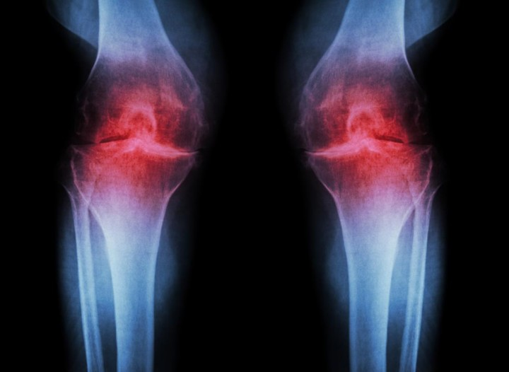 Treat Osteoarthritis with Ayurveda, Naturopathy, and Homeopathy