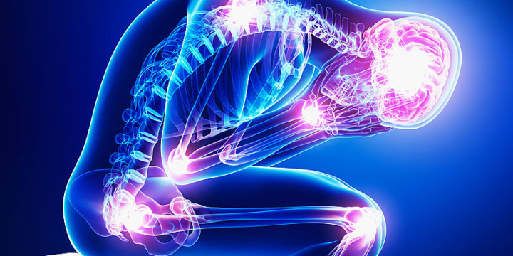 Treat Fibromyalgia with Ayurveda, Naturopathy, and Homeopathy