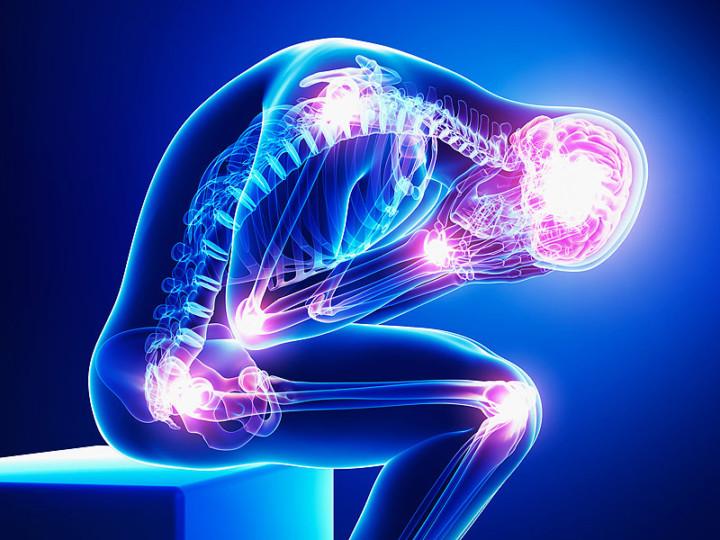 Treat Fibromyalgia with Ayurveda, Naturopathy, and Homeopathy
