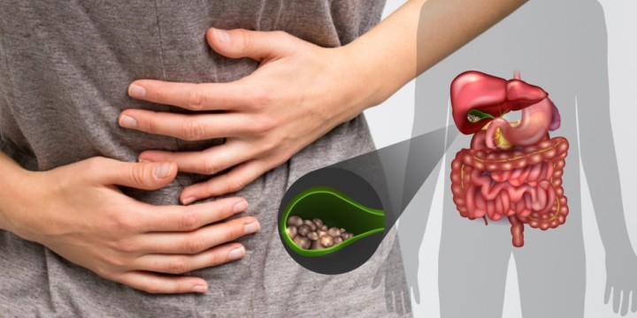 treat gallstones naturally
