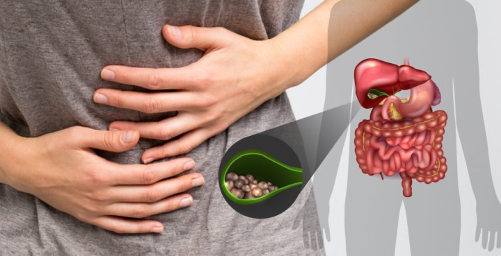 treat gallstones naturally