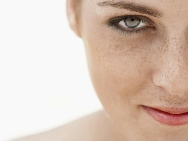 Hyperpigmentation and Melasma