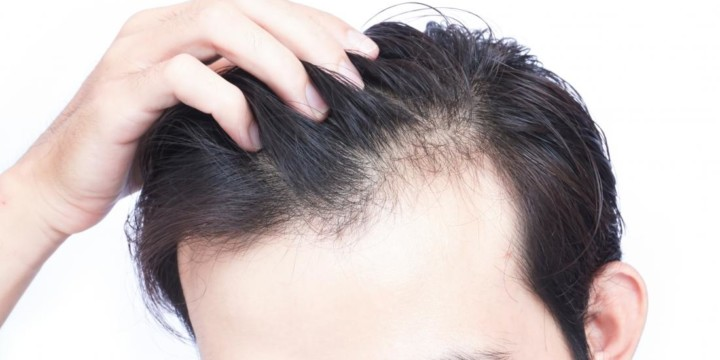 hair loss is a skin problem