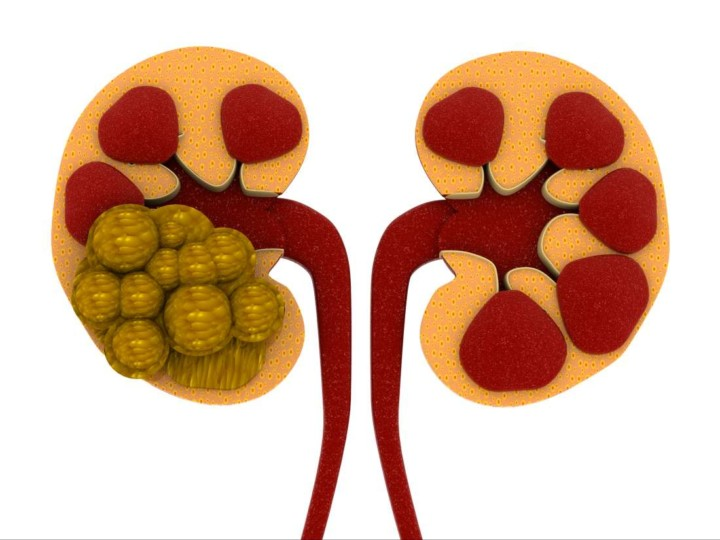 Prevent and Treat Kidney Stones Naturally